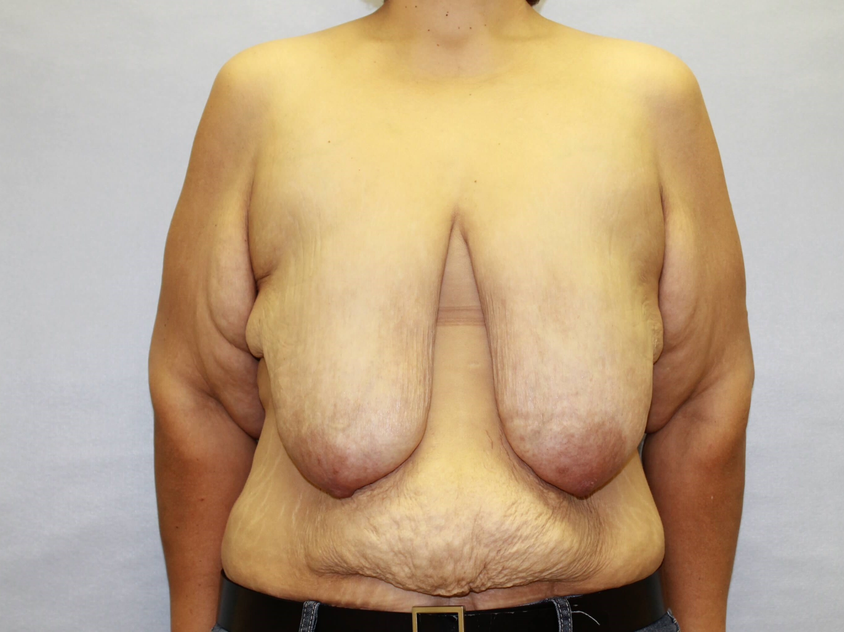 Breast Lift Raleigh Before