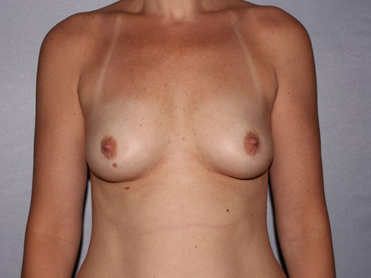 Breast implants Raleigh Before
