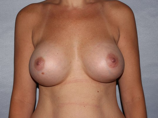 Breast implants Raleigh After