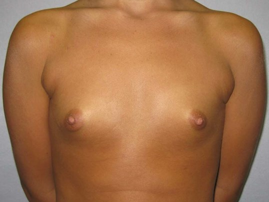 Saline Breast Implants Raleigh Before