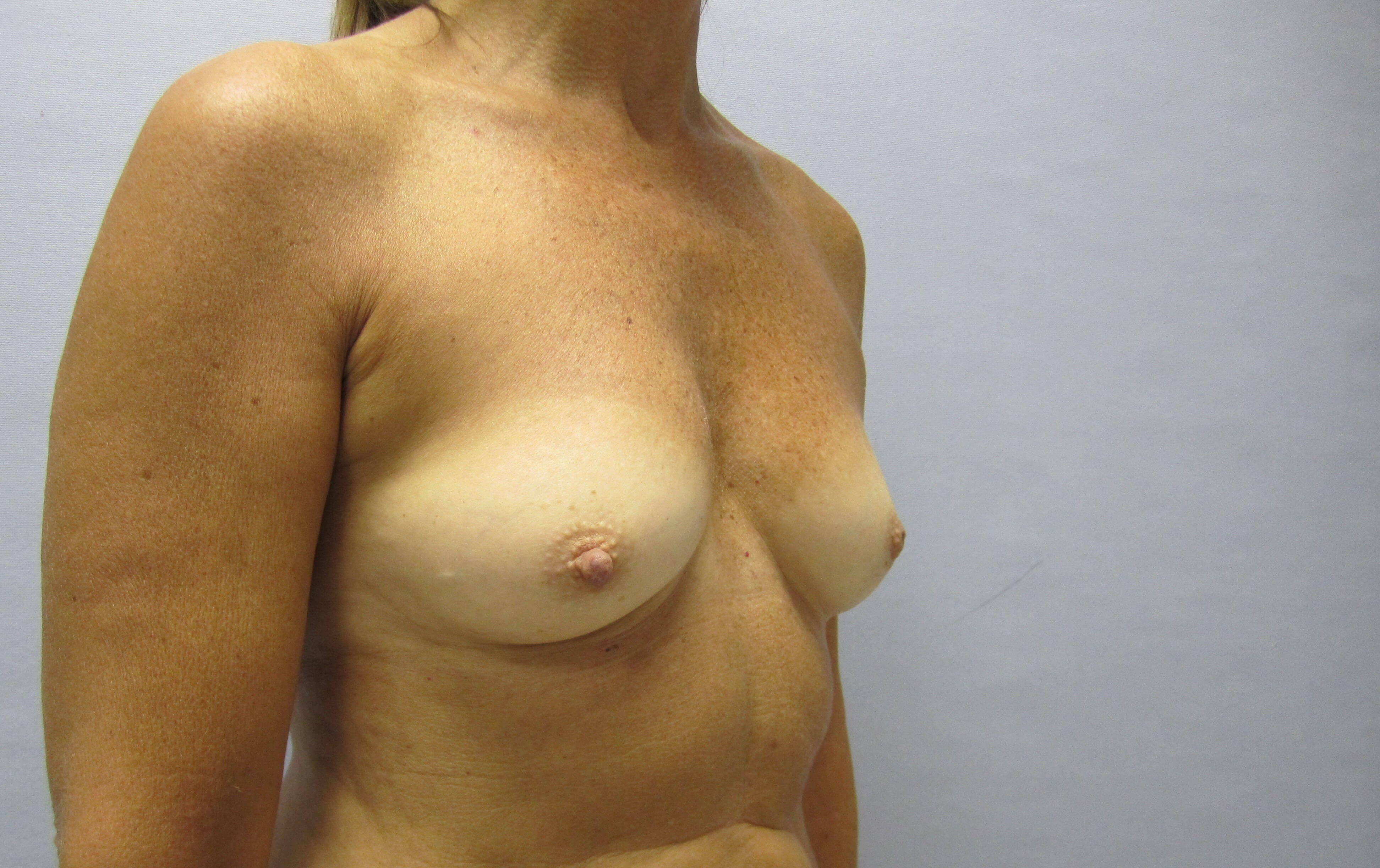 Breast enhancement Raleigh Before