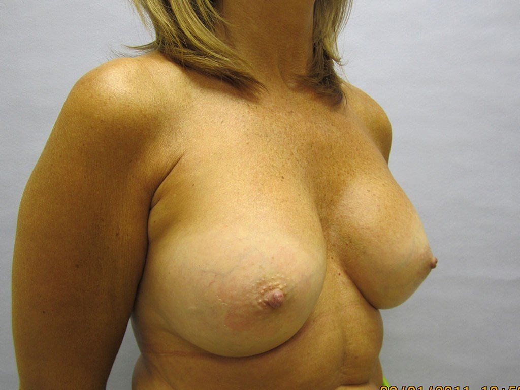 Breast enhancement Raleigh After