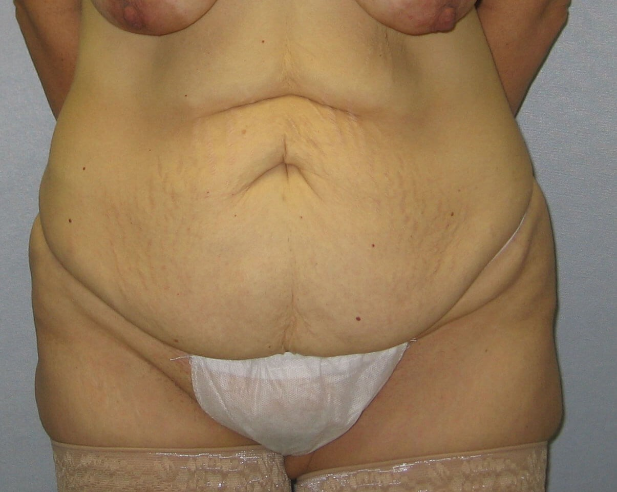 Abdominoplasty in Raleigh Before