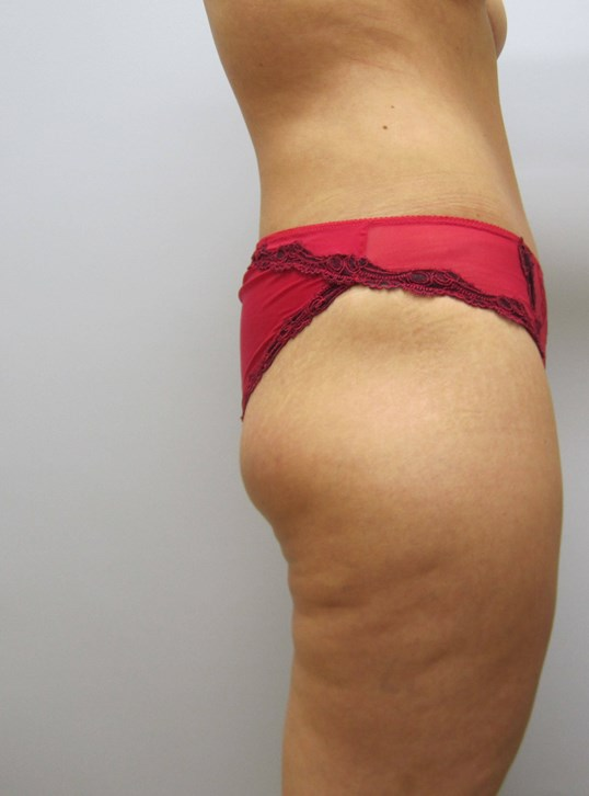 Tummy Tuck Raleigh After
