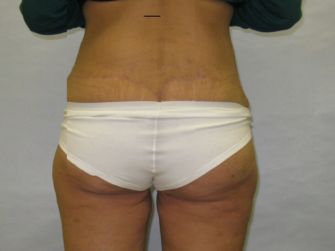 Body Lift and thighlift After