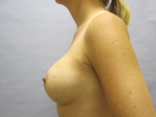 Breast Aug Raleigh After