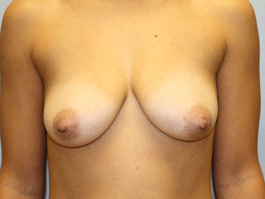 Augmentation mastopexy Raleigh Before