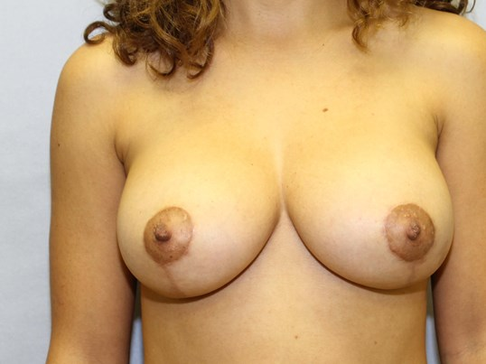 Augmentation mastopexy Raleigh After