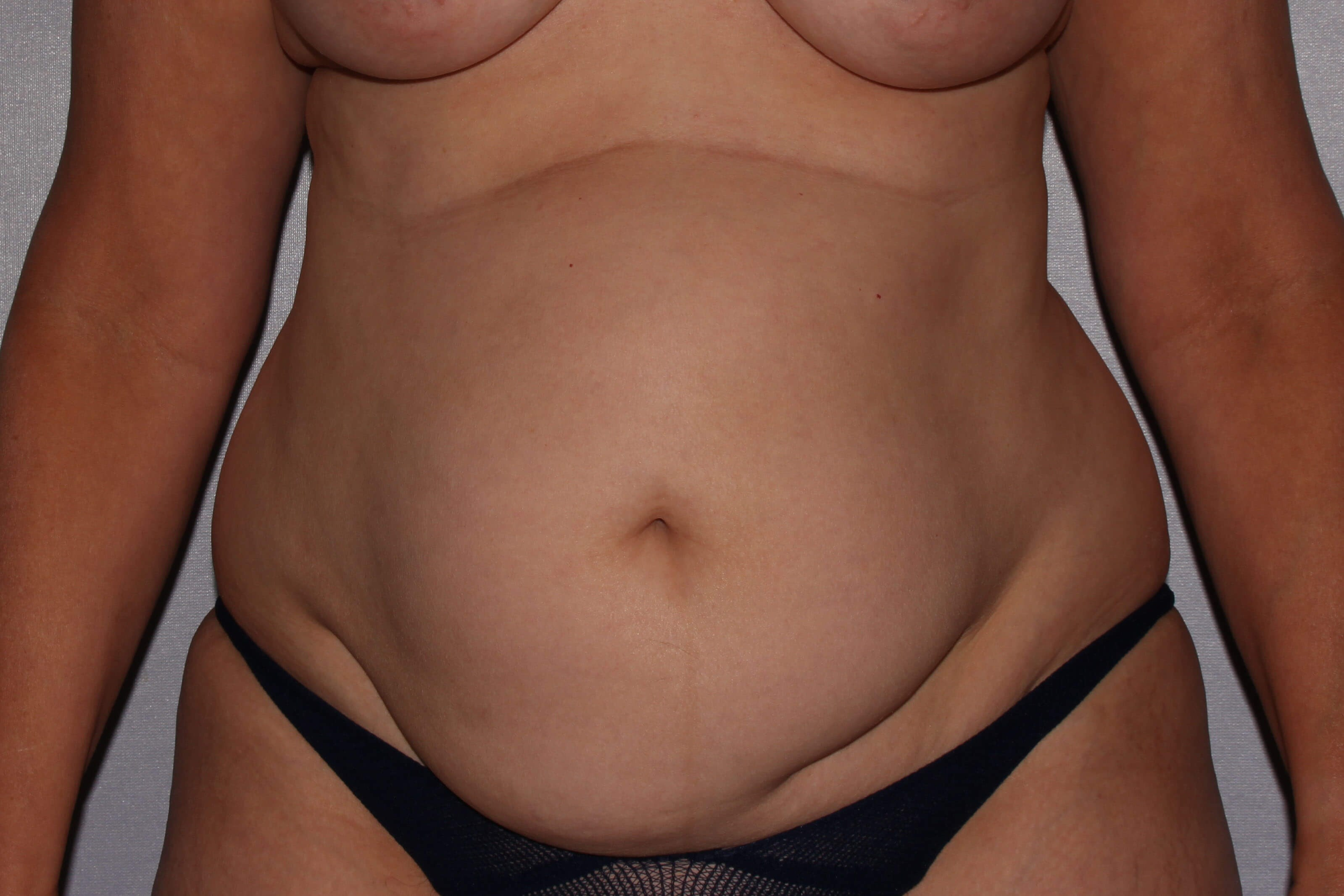 Tummy Tuck Raleigh Before