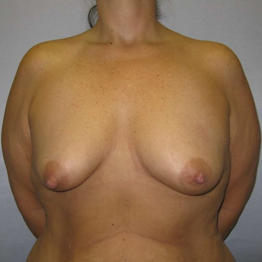 Breast Augmentation Raleigh Before