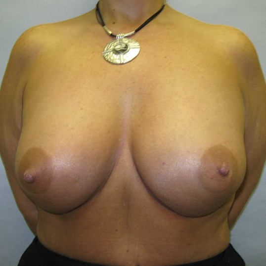 Breast Augmentation Raleigh After
