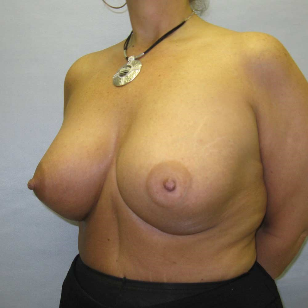 Breat Augmentation Raleigh After