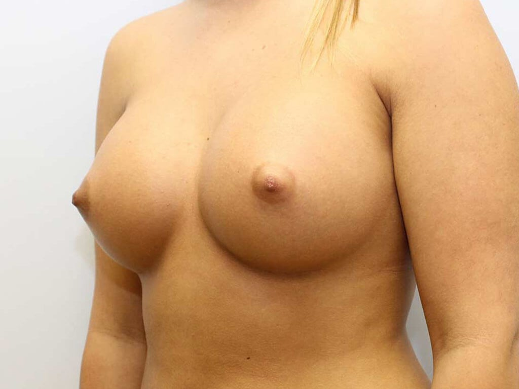 Saline Implants Raleigh After