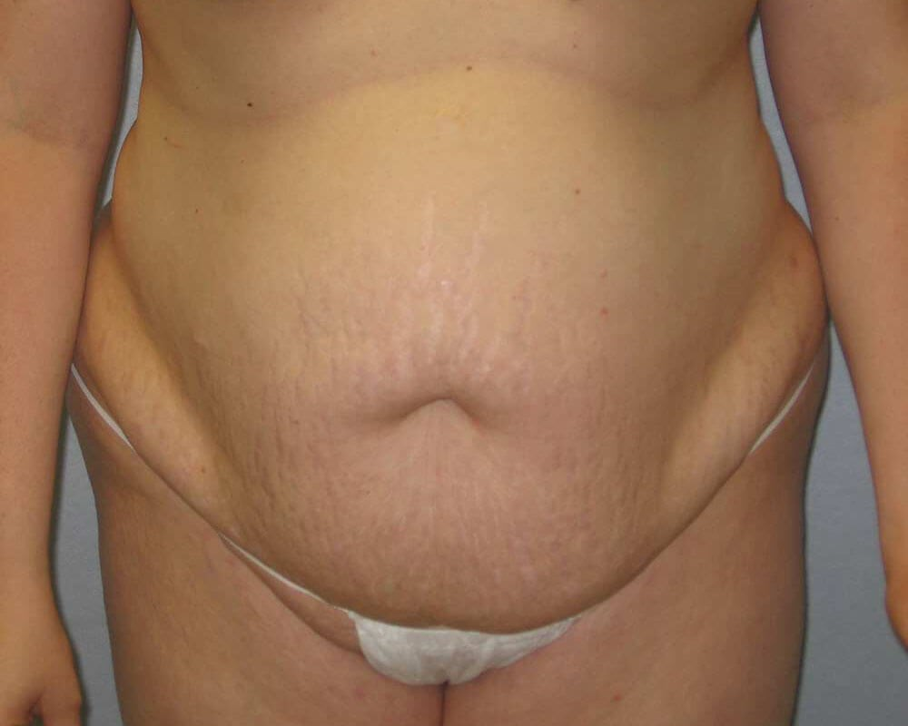 Tummy Tuck In Raleigh Before
