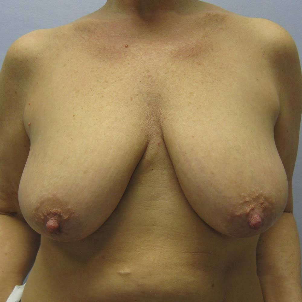 Vertical Breast Lift Raleigh Before