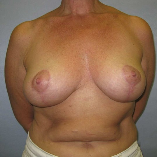 Vertical Breast Lift Raleigh After