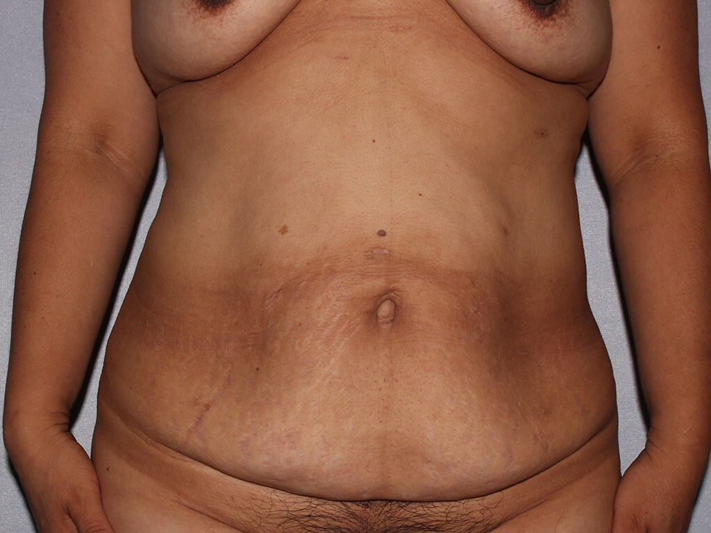 Tummy Tuck with Fat Transfer Before