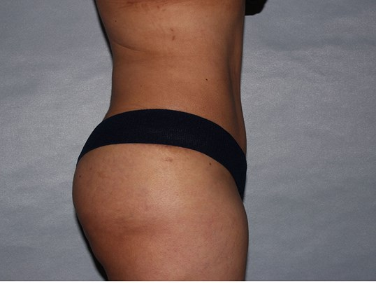 Tummy Tuck with Fat Transfer After