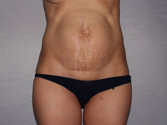 Stretch marks and umbilical hernia and diastasis fixed with