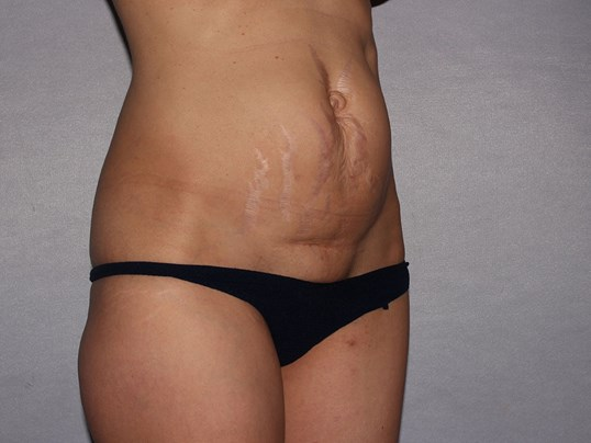 Tummy Tuck/Hernia repair, NC Before