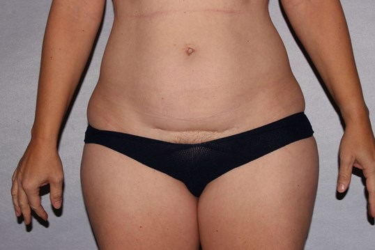 Mini Tummy Tuck Raleigh, NC Before