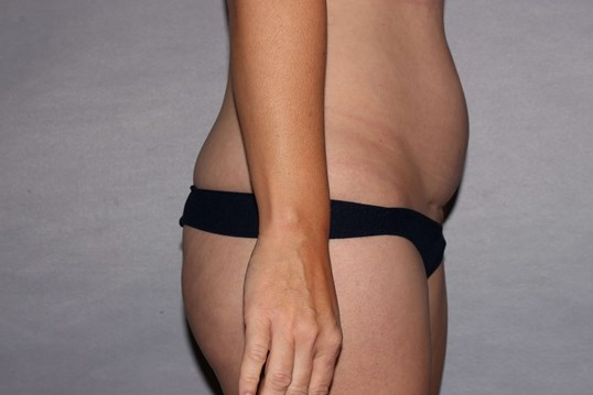 Mini Tummy Tuck, Raleigh, NC Before