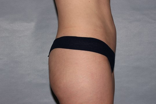Mini Tummy Tuck, Raleigh, NC After