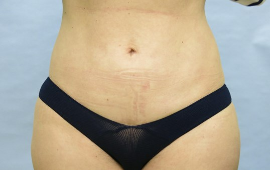 Mini Tummy Tuck Raleigh, NC After