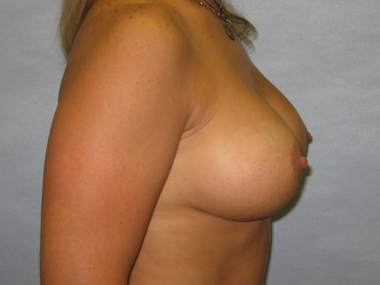 Saline Breast implants Raleigh After