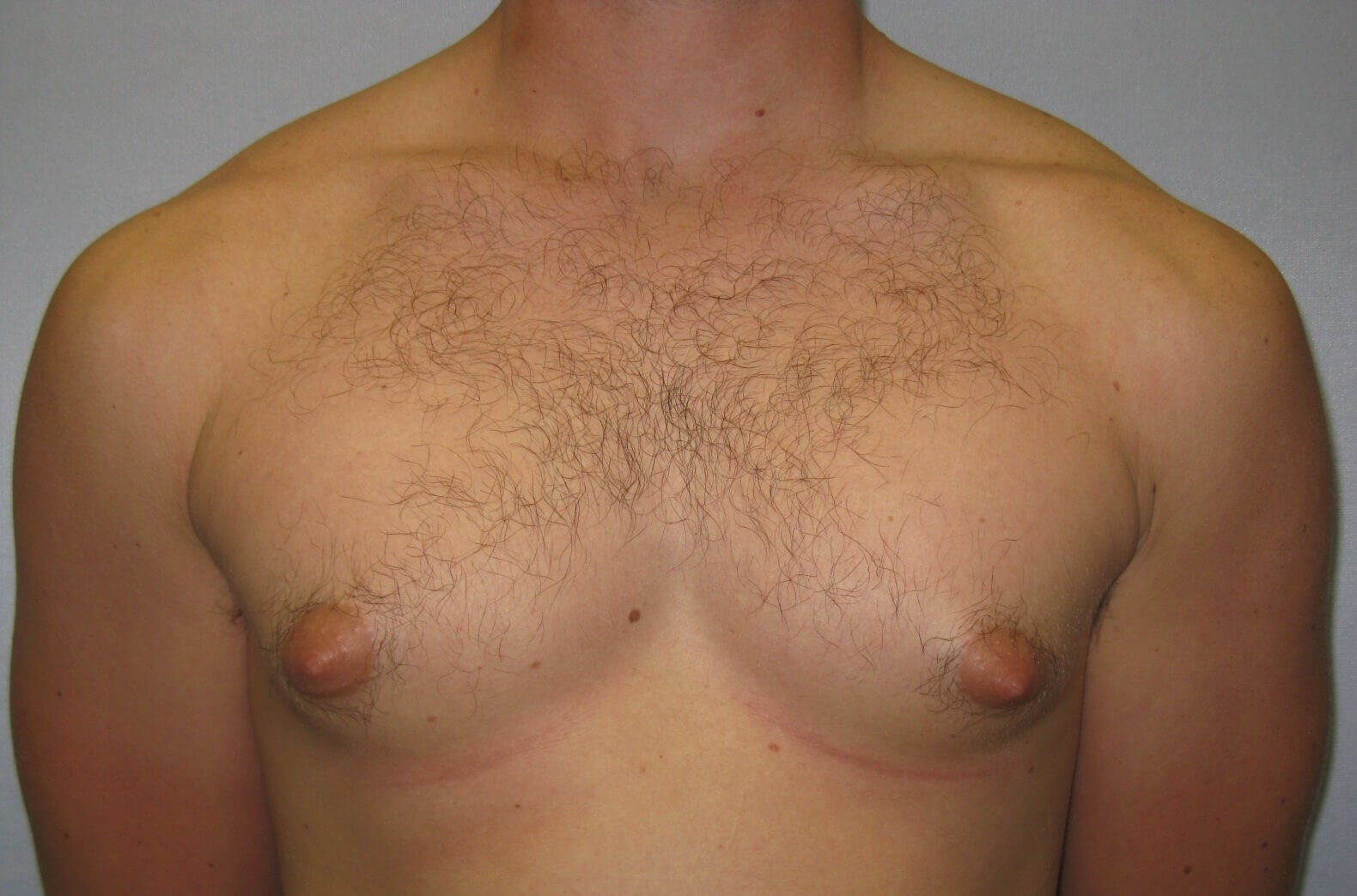 Male gynecomastia Raleigh Before