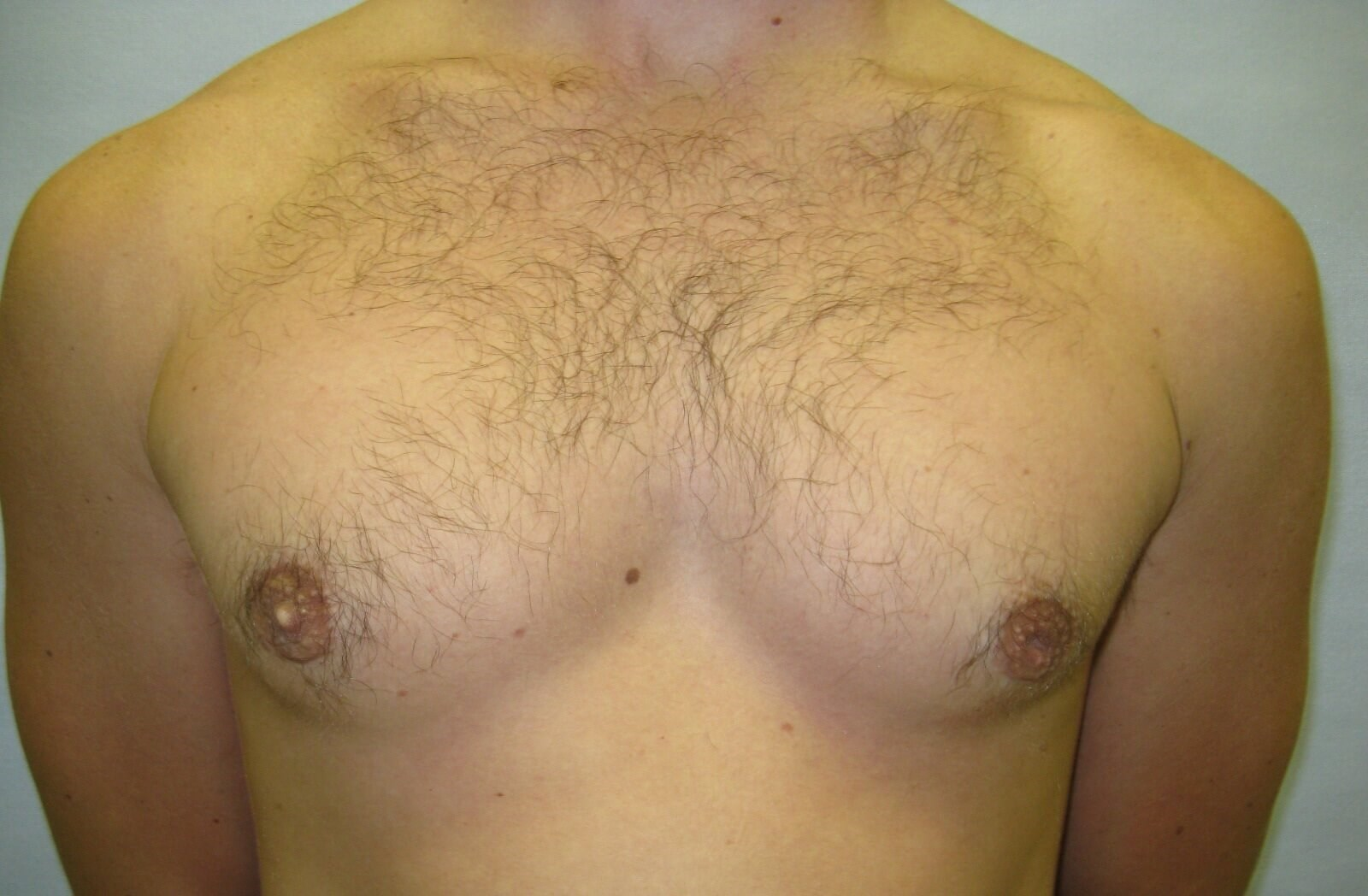 Male gynecomastia Raleigh After