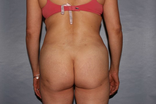 Buttock Enhancement Raleigh After