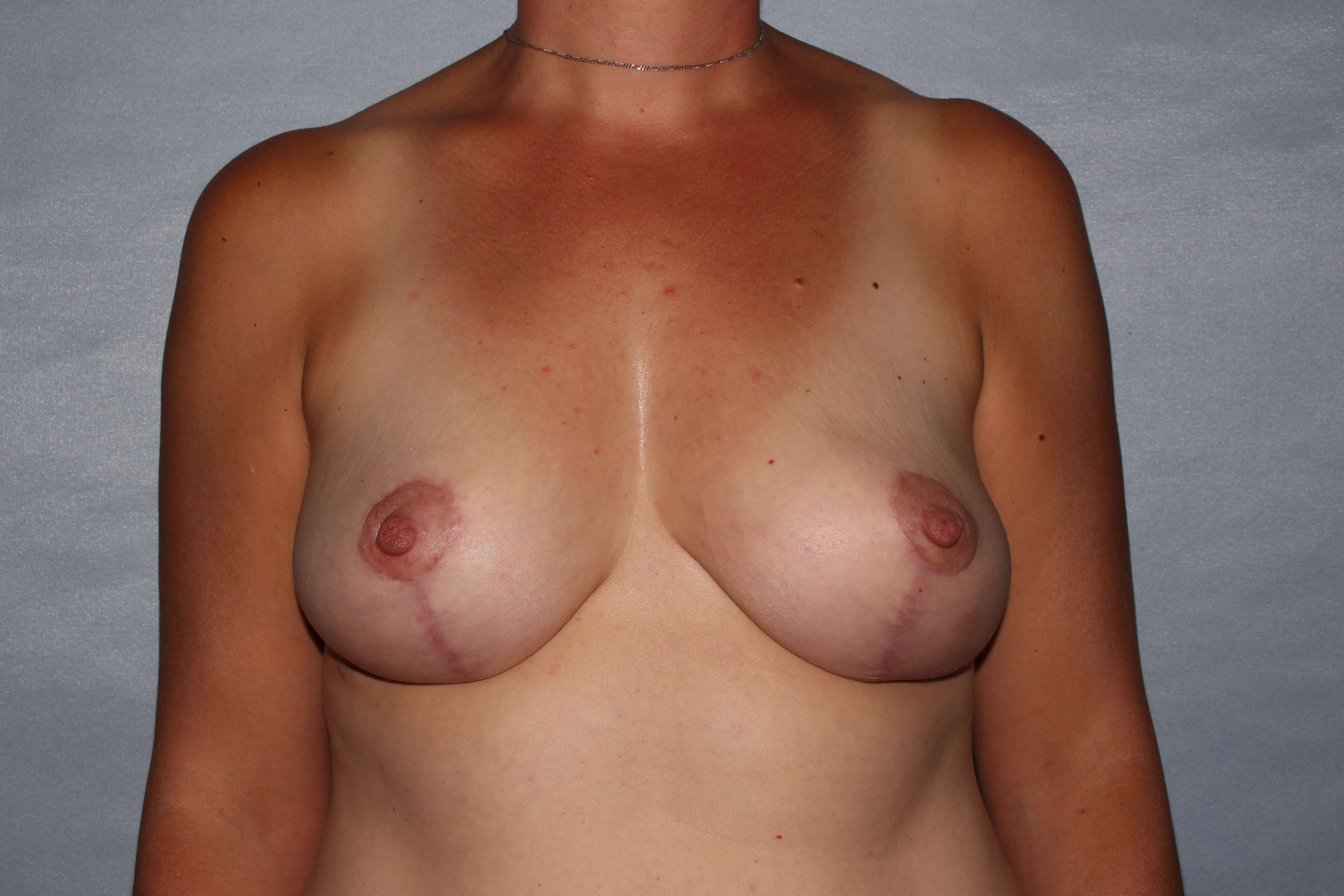 Breast Lift Raleigh After