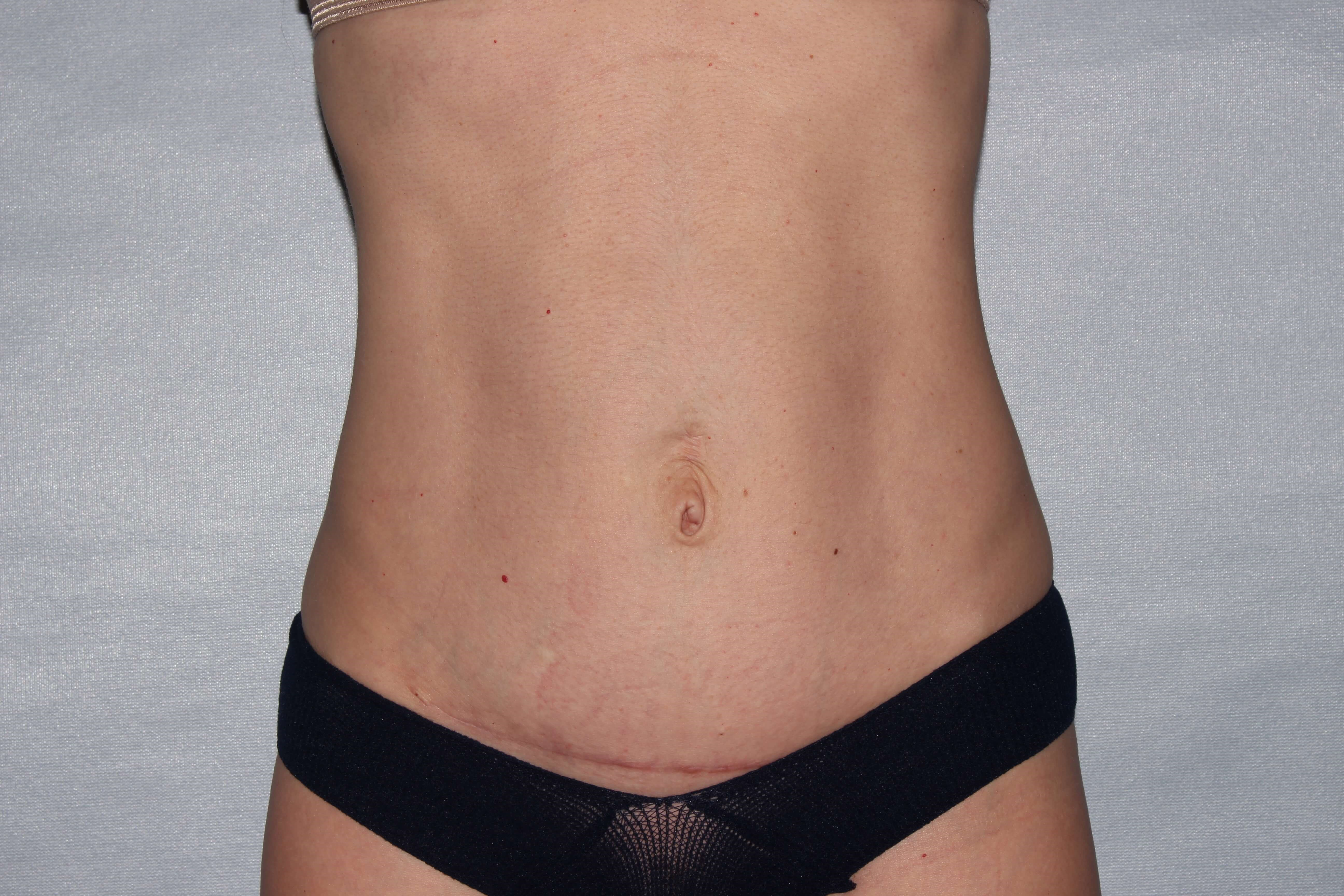 Diastasis Repair Raleigh After