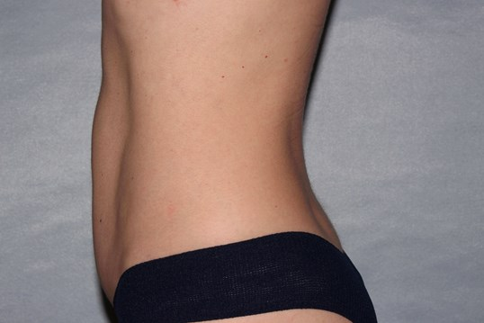 Diastasis Repair Raleigh, NC After