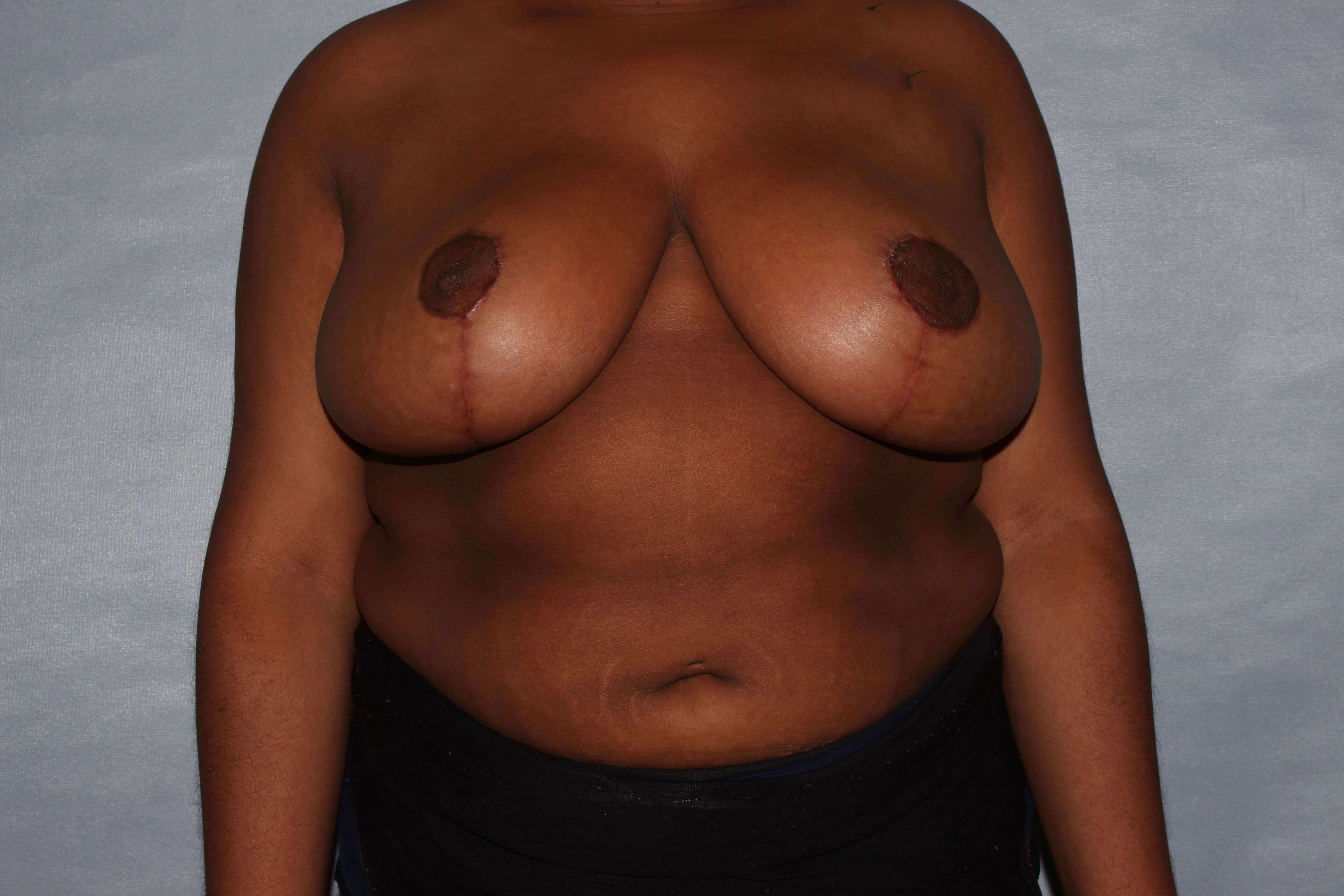 Breast Reduction Raleigh, NC After