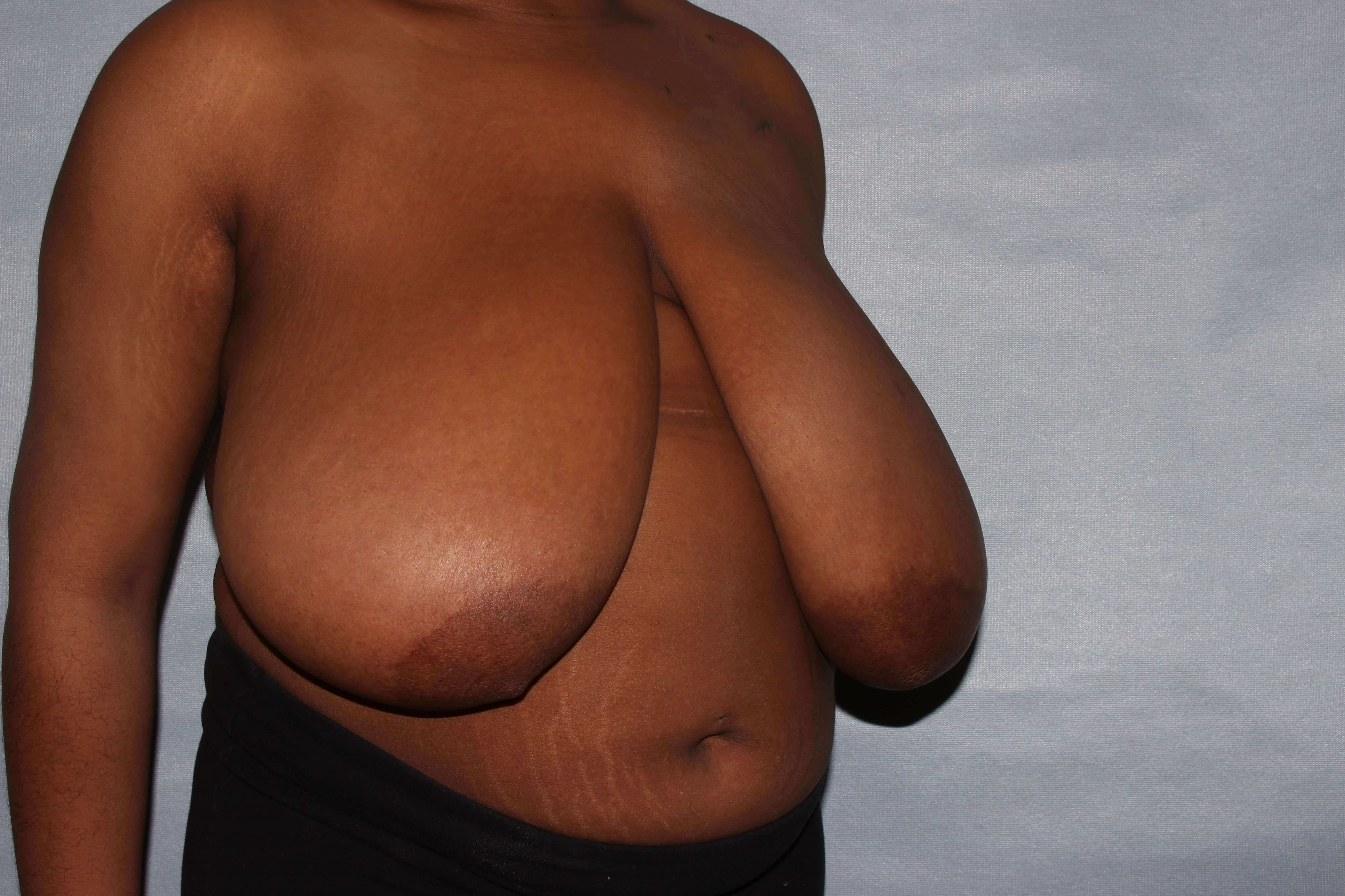 Breast Reduction Raleigh,NC Before