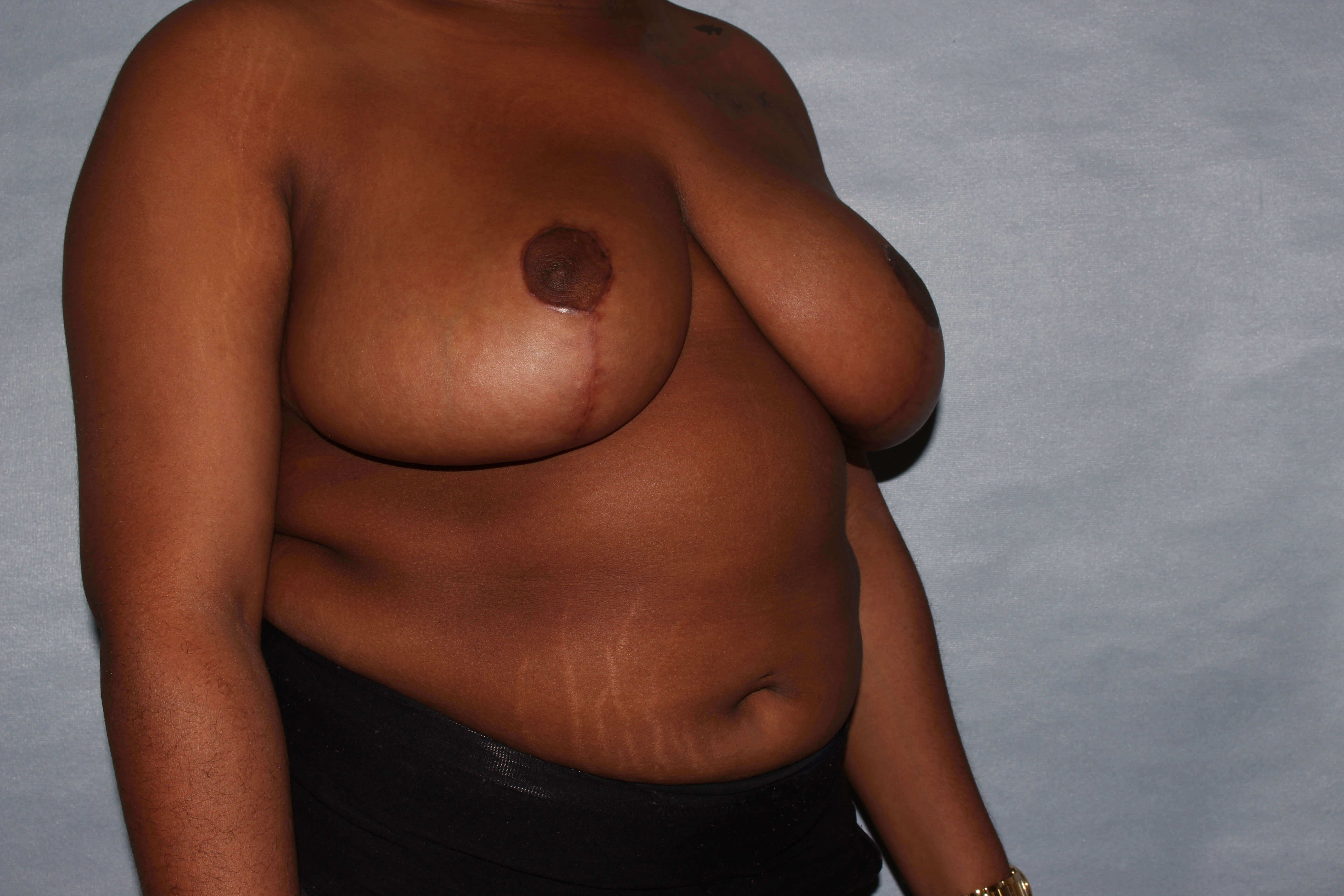 Breast Reduction Raleigh,NC After