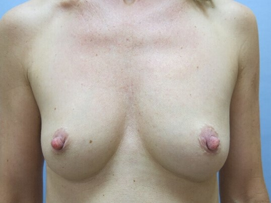 Breast implants Raleigh, NC Before
