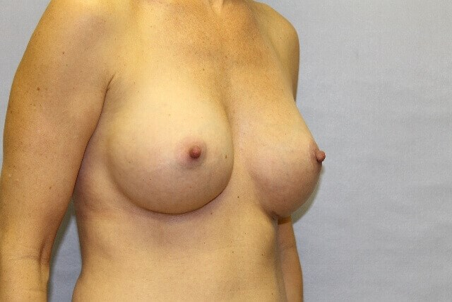 Breast Implants Raleigh, NC After