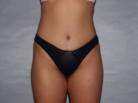 Liposuction , Raleigh, NC After