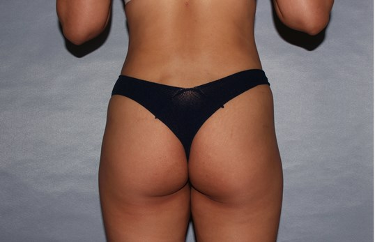Liposuction Raleigh, NC After