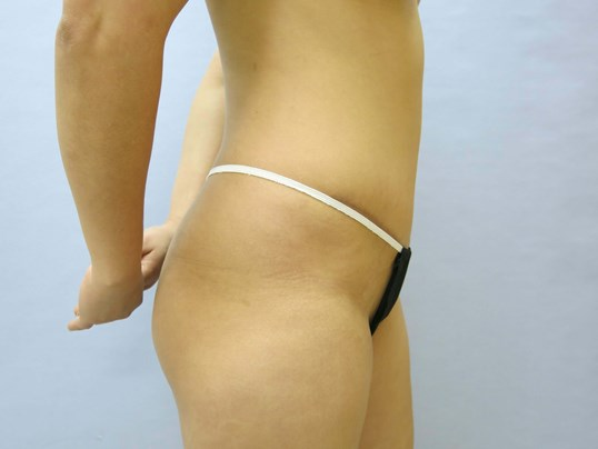 Liposuction Raleigh, NC Before