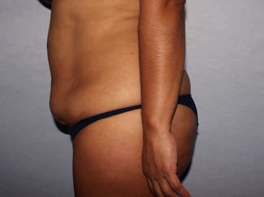 Tummy Tuck Raleigh, NC Before