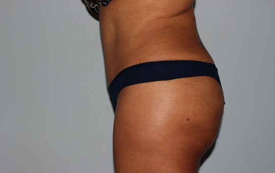 Tummy Tuck Raleigh, NC After