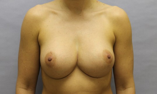 Subglandular Breast Implants After