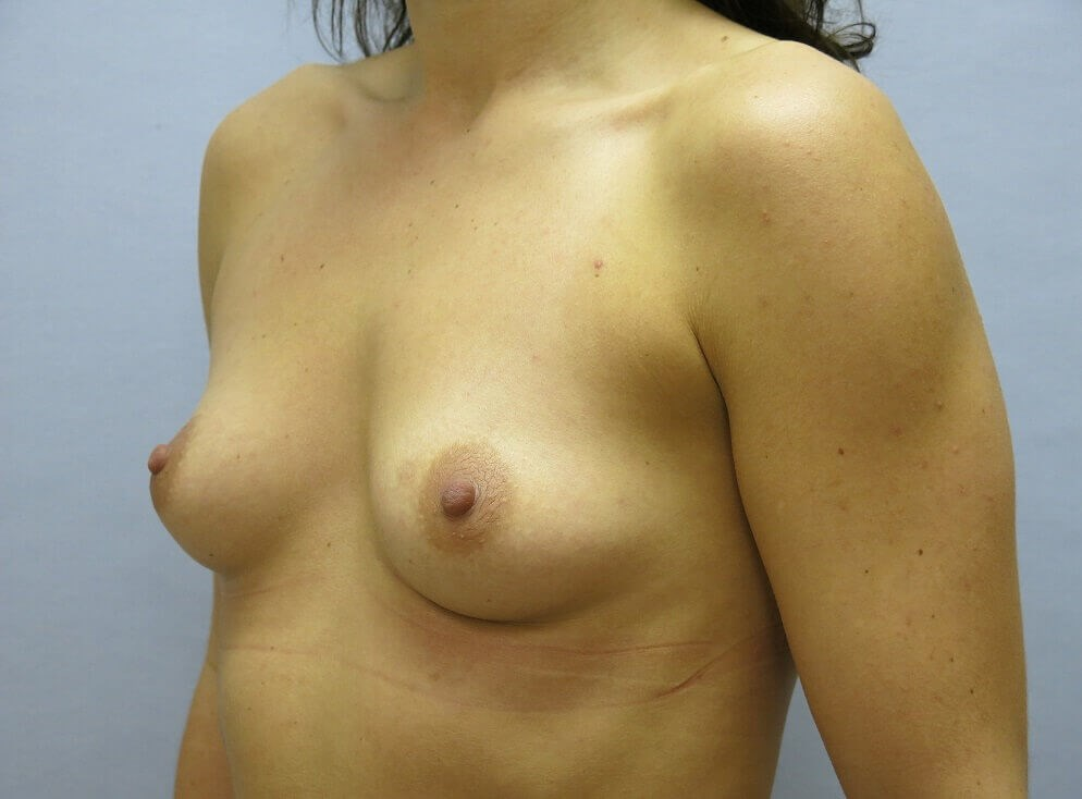 Subglandular Breast Implants Before
