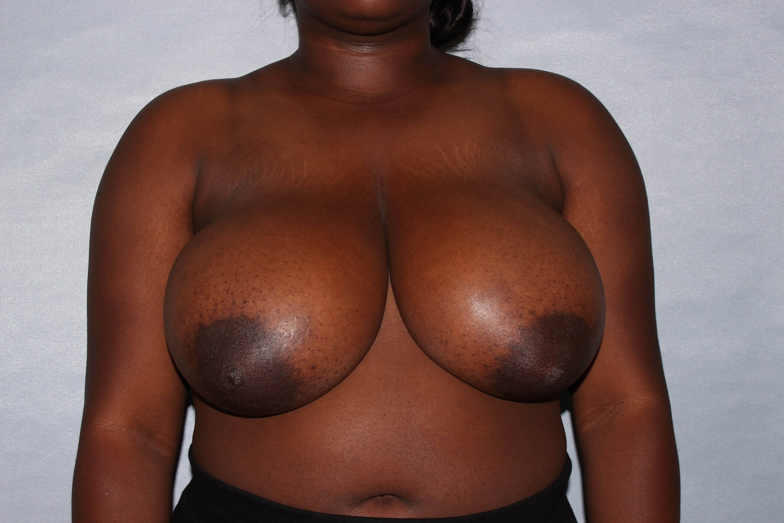 Breast Reduction , Raleigh,NC Before