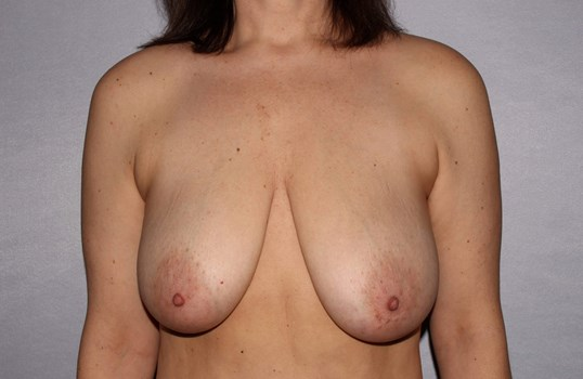 Breast Lift Raleigh, NC Before