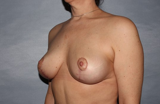 Breast Lift Raleigh, NC After